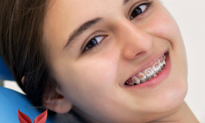 Cosmetic-dentist-mission-viejo-speaks-about-the-advantages-of-lingual-braces